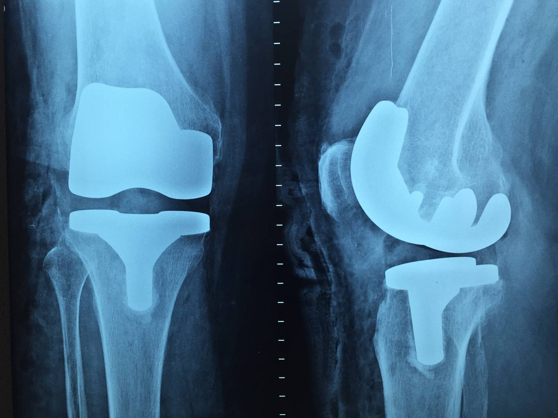 Jak zostać ortopedą?